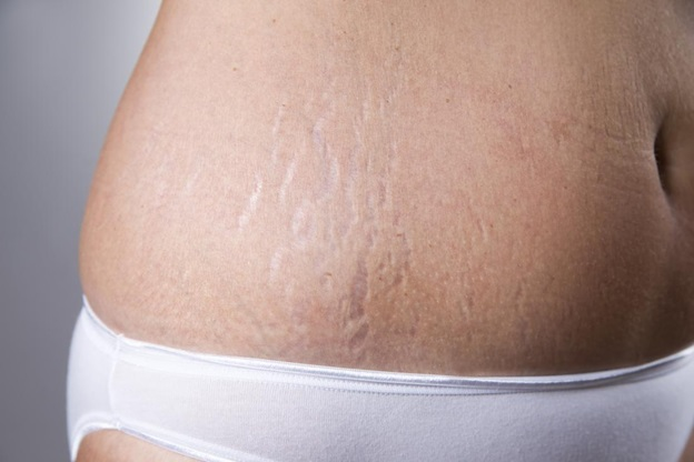 The Difference Between White and Red Stretch Marks